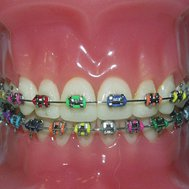 Do you need braces?